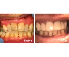 Affordable Cosmetic Dentistry Charleston SC- Dr. Andrew Greenberg