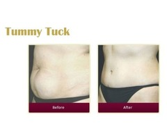 Most Popular Tummy Tuck Advanced Treatments By Dr. Thuan Nguyen