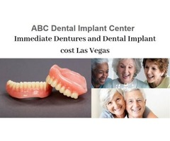 All on Four Dental Implants Services in Las Vegas