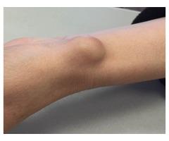 Lipoma Removals Without Surgery - Lipoma Wand