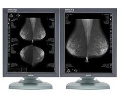 Refurbished Eizo Radiforce 5MP Pair Diagnostic Monitors (GS510)