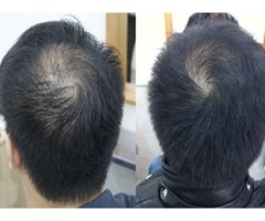 Los Angeles Hair Loss Treatment