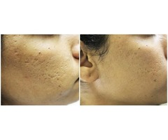 Microneedling in Oahu - Best Honolulu Medical Spa