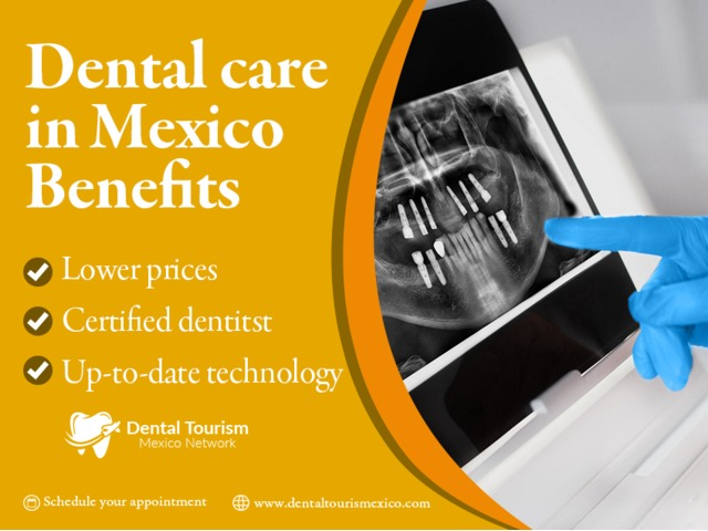 Complete dental services in Mexico's top locations | free-classifieds-usa.com