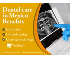 Complete dental services in Mexico's top locations
