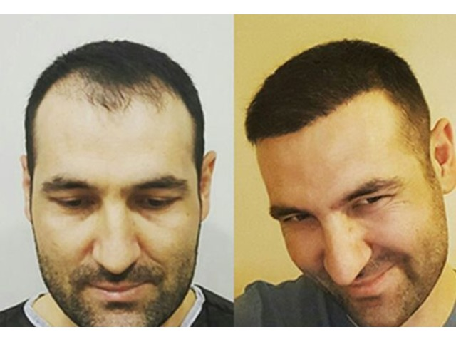 Restore your confidence with hair transplant Chicago | free-classifieds-usa.com