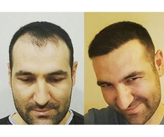 Restore your confidence with hair transplant Chicago