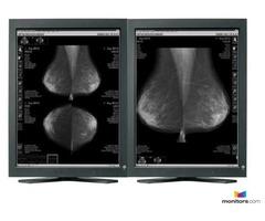 Refurbished 5MP Pair Eizo Radiforce Diagnostic Monitor (RX211)