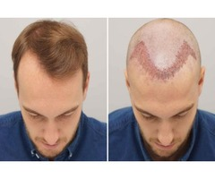Pattern baldness is the major reason for hair loss.