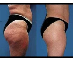 Get the Best Cellulite Treatment On Legs