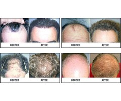 Hair Restoration Institute of DFW Fort Worth