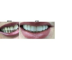Transform your smile with dental implants New York