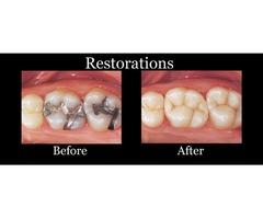 Sealant Restoration Dental