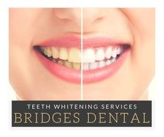 Brandon Dentist – Crowns, Teeth Whitening, Fillings, Dentures