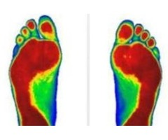 Get The Ultimate Treatment To Cure Chronic Plantar Fasciitis