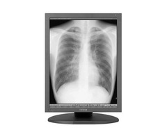 New 3MP Totoku Monochrome Grayscale Radiology Monitor - MS33i2