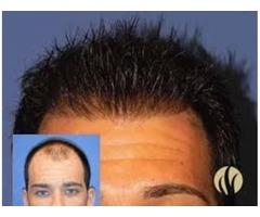 Fort Worth Medical Hair Transplants