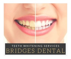 Brandon Dentist Tooth Fillings - Tampa Top Dentist