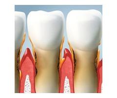 Consult Gaithersburg  Dentist MD To Get Ultimate Dental Health