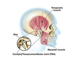Hire The Services of TMJ Temporomandibular Joint Disorder near Gaithersburg MD