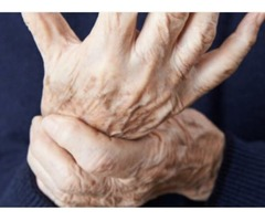 Cure for pain caused due to Arthritis