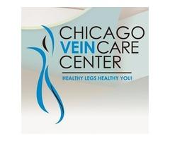 Vein Disease Treatment in Chicago