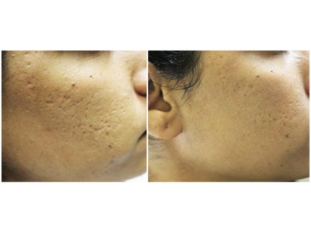 Microneedling Treatment | free-classifieds-usa.com