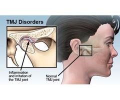 Best Tmj Specialist Michigan Clinic