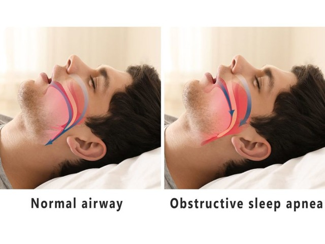 Advanced Sleep Medicine Services MI   free-classifieds-usa.com
