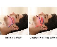 Advanced Sleep Medicine Services MI
