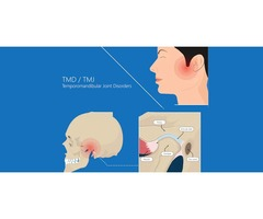 Get Benefit From TMJ Temporomandibular Joint Disorder near Gaithersburg MD