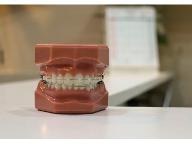 Best dental consultations online | free-classifieds-usa.com