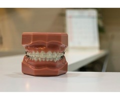 Best dental consultations online