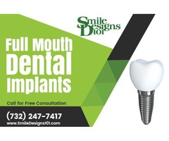 Full Mouth Dental Implant Treatment in Somerset, NJ