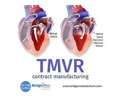 TMVR Contract Manufacturing