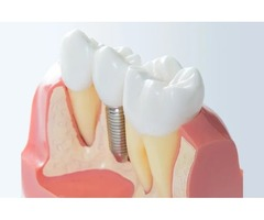 Best Root Canals in Glenview