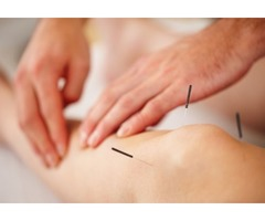 Get Finest Acupuncture Therapy