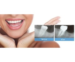 Call New Hope Dental Care For Quality Root Canal Aid