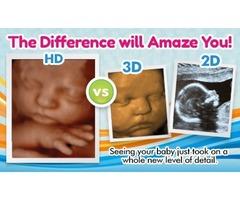 2D/3D/4D/5D sonograms - Here is Baby 5D Ultrasound