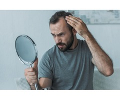 Hair Loss Treatment for Men and Women in Dallas/Fort Worth