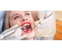 Are you looking for dentist in naples fl for Tooth Extraction