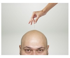 Acupuncture For Hair Loss