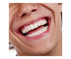 Alignment Or Straightening Of The Teeth