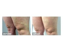 Harvard Trained Doctor For Varicose Veins