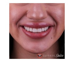 Top Cosmetic Dentistry Near Me