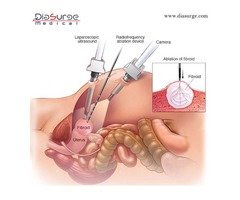 Uterine Fibroid | Minimally invasive surgery