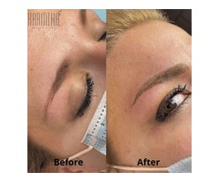 Microblading NYC - Microblading Clinic Forest Hills, New York