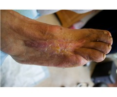Diabetic foot specialist Inglewood | Examine Your Feet Regularly.