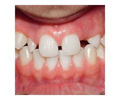 Emergency Dentist Open 24 Hours in Scottsdale
