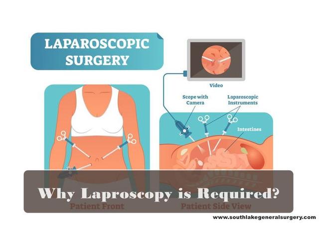 Why Laparoscopy is required? Best Laparoscopic Surgeon | free-classifieds-usa.com